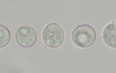 Amanita pachycolea spores